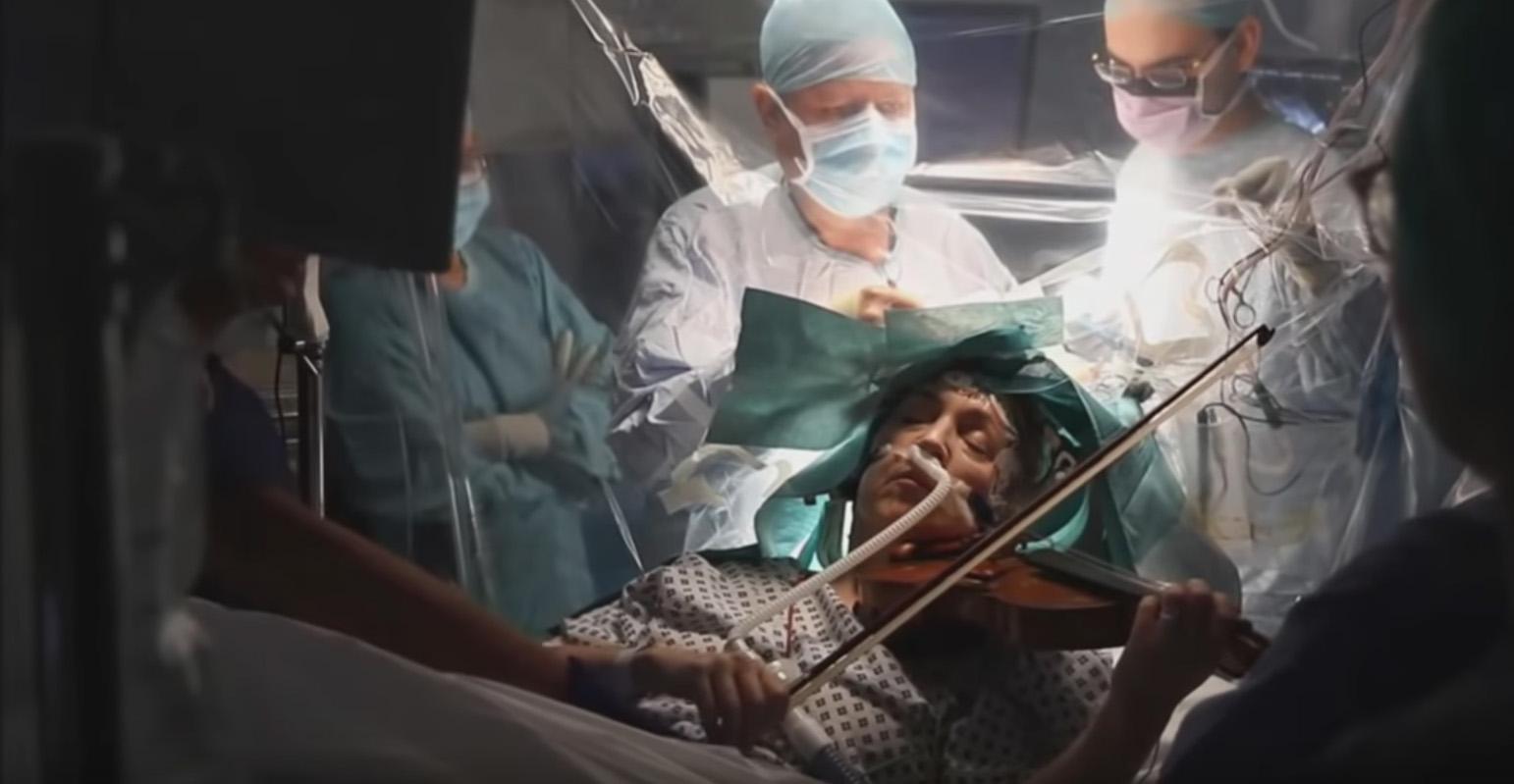 VIDEO: Mujer toca el violín mientras la operan para remover un tumor cerebral