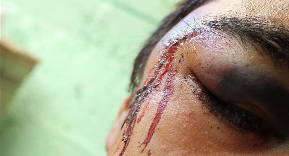 Ataque en FES Acatlán