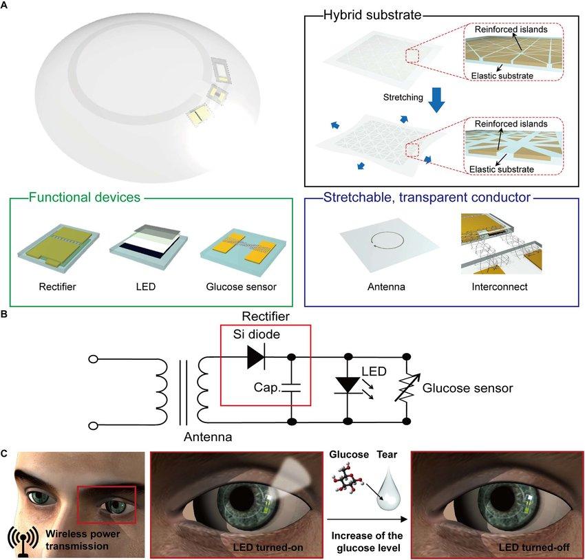 ¡Adiós a los pinchazos! Desarrollan lentes de contacto para monitorear la diabetes
