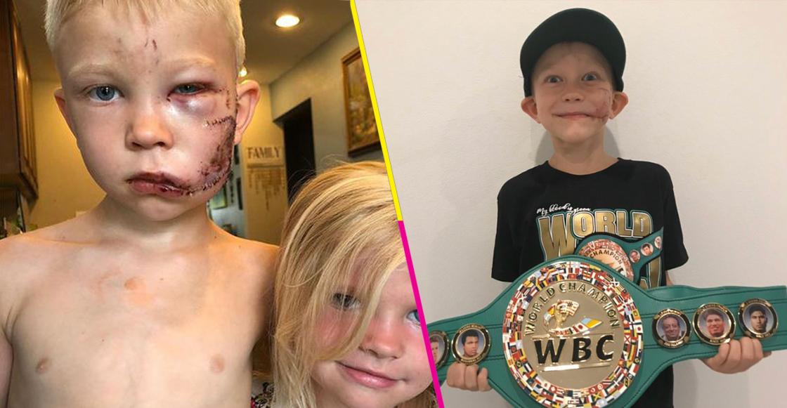 WBC nombró como el 'Hombre más Valiente de la Tierra' a Bridge Walker, el niño de 6 años que salvó a su hermanita