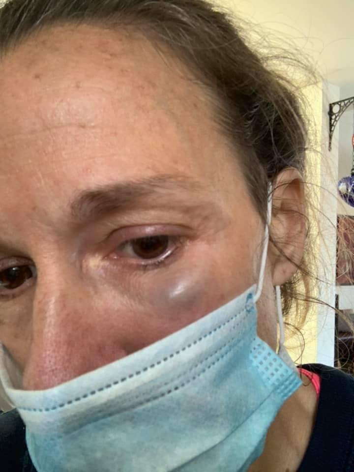 Misma normalidad: Denuncian a hombre que golpea a mujeres en el Parque Hundido de la CDMX