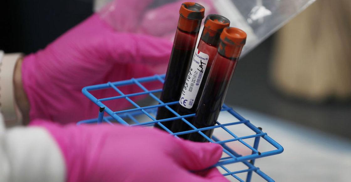 segunda-vacuna-coronavirus-rusia