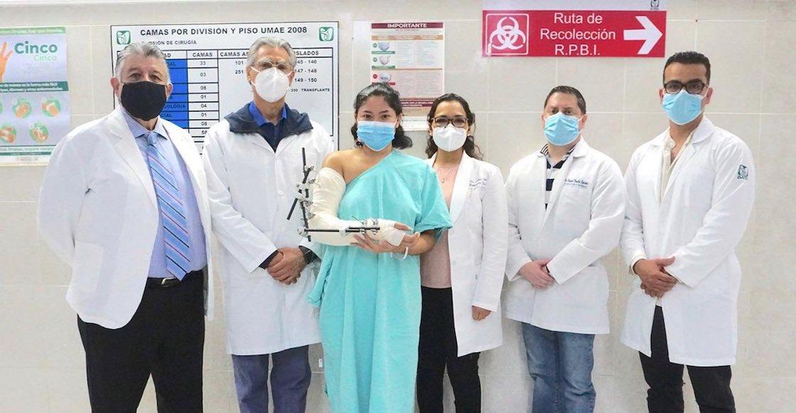 operacion-brazo-imss-reimplantar