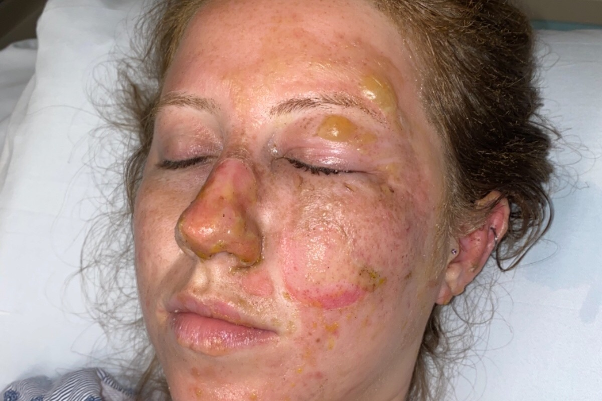 Turista termina con quemaduras en la cara durante visita a un bar de Cancún