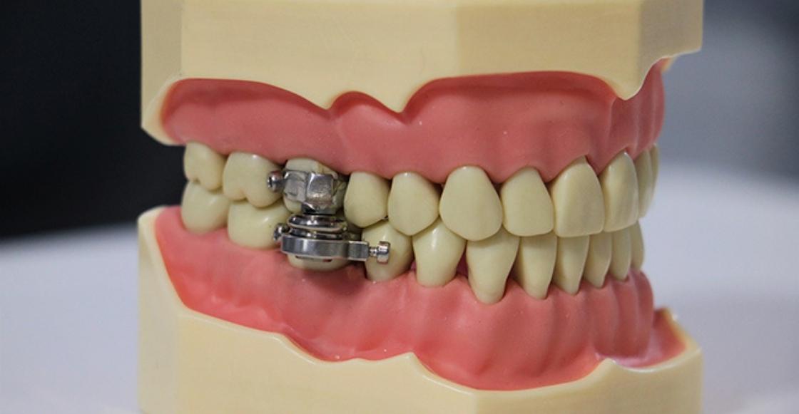 ¿Un candado? Este es el extraño aparato dental con el que quieren combatir la obesidad