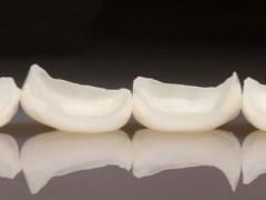 laminados de porcelanas dentárias