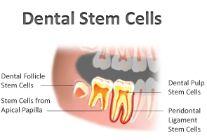 siso e celulas tronco