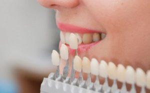 seleção de cor da restauração dentária