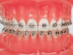 tratamento ortodontico