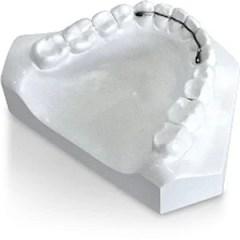 contencao ortodontica fixa