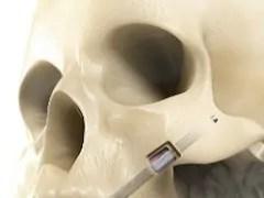 implante zigomático