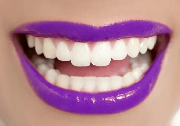 Clareamento Dental Em Porto Alegre 10 Maneiras Sorridere