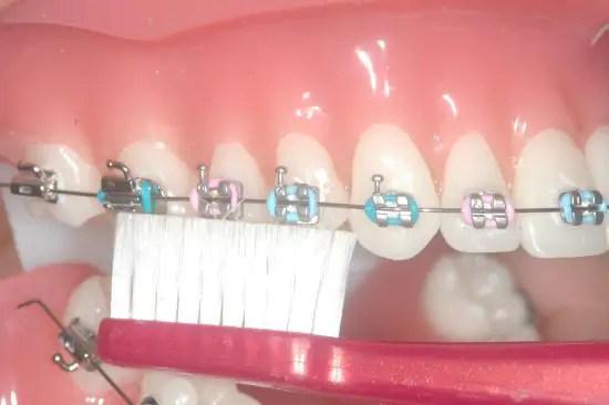 higiene aparelho ortodontico