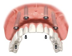 protocolo parafusado no implante