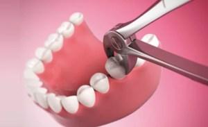 extracao do dente na clínica geral