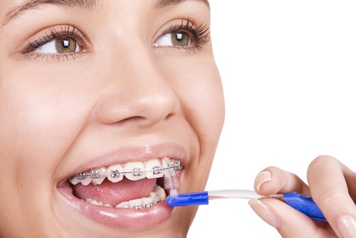 91f9a4cbd Cuidados com os aparelhos ortodônticos ⋆ Dentista Sorridere