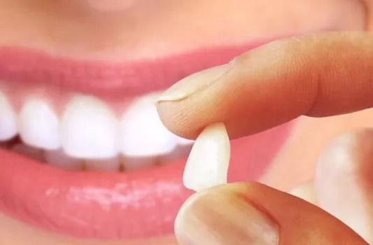 Lentes de contato dentais estão mais populares que as prótese de silicone 05776bdc9c