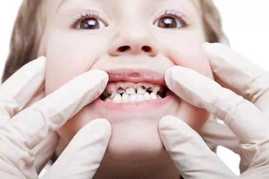 Bactérias cromogênicas Manchas escuras nos dentes