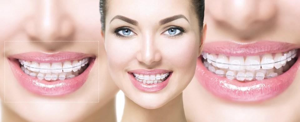Aparelho Dental Vantagens E Cuidados Dentista Sorridere