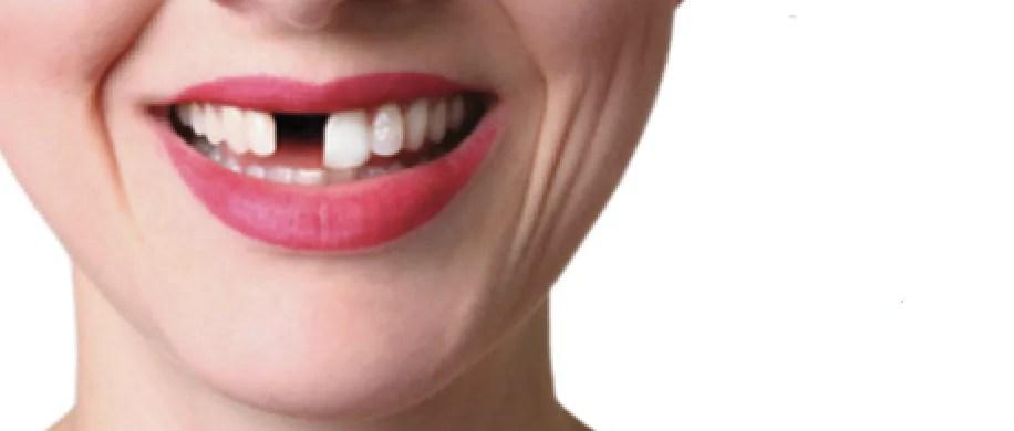 dentes faltando