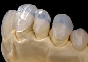 vantagem das letes de contato nos dentes