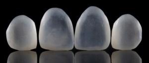 lentes de contato nos dentes