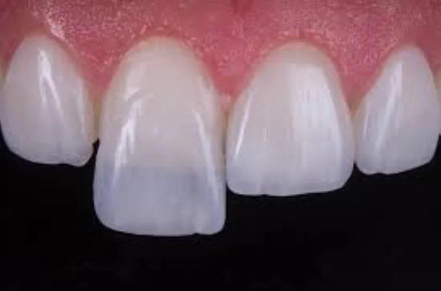 Lentes de contato dental  Conheça o método e saiba pra quem é indicado 245d603f9e