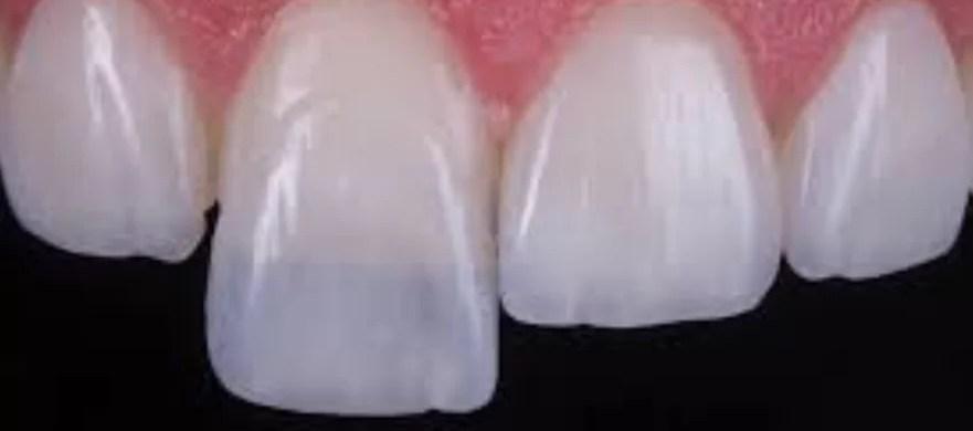 lente de contato dentais