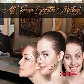 Lüks Güzellik Merkezinden Botoks Uygulaması