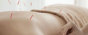 Acupuntura para a fibromialgia