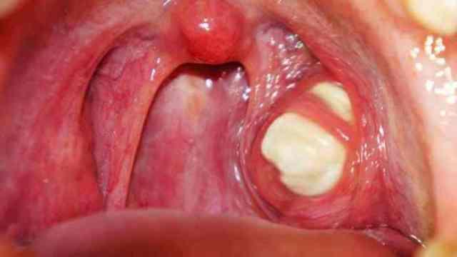 Tonsil stones