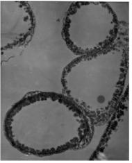 Immagini al microscopio di cellule fungine melanized:.  Da Dadachova et al.  2007