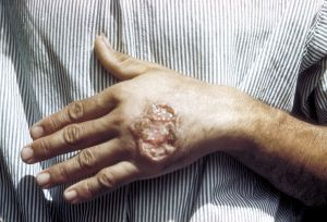 Skin ulcer on the hand due to leishmaniasis. (Photo credit: CDC Dr. S. Martin)
