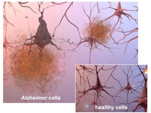 The buildup of toxic waste proteins causes brain cells to die in Alzheimer's disease. (Photo credit: alz.org)
