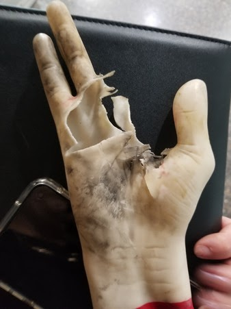 Firework-accident-with-imitation hand