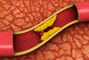Alle Feste di Natale il colesterolo sale del 20%, lo riferisce uno studio danese