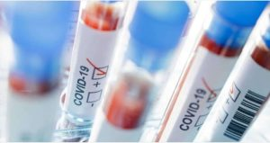 Coronavirus, 27 i casi registrati in Calabria nell'ultimo giorno