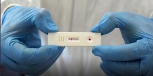 Coronavirus, due persone positive al test sierologico in Calabria