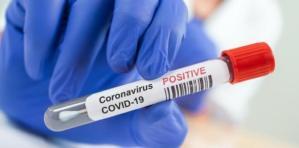 Coronavirus, oggi in Calabria si registrano 4 morti e 426 nuovi casi