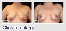 Breast Lift for Tuberous Breasts