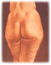 Liposuction in Seattle