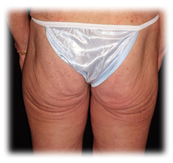 Buttock enhancement a.k.a. brazilian butt lift by Seattle Plastic Surgeon