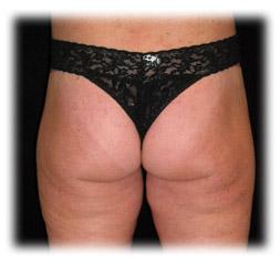 Buttock enhancment a.k.a. Brazilian butt lift by Seattle plastic surgeon