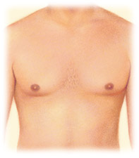 Male breast reduction for Gynecomastia by Seattle Plastic Surgeon