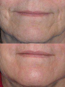 Seattle Plastic Surgeon, Facial filler, skin care