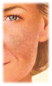 Facial Resurfacing with Croton oil chemical peel by Seattle Plastic Surgeon
