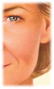 Facial Resurfacing with chemical peel by Seattle Plastic Surgeon