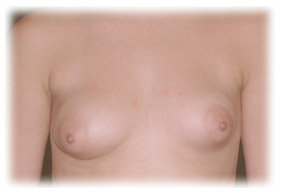 Tuberous breast Deformity Seattle Plastic Surgeon