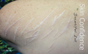 blog cutting scars self-injury-scars-before-after-treatment-2
