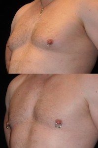 Top photo shows a guy embarrassed to take off his shirt.  Bottom photo shows a guy who feels and looks great after gynecomastia surgery and working out.